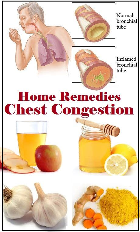 home remedies for congestion coughs home remedies for chest congestion congestion
