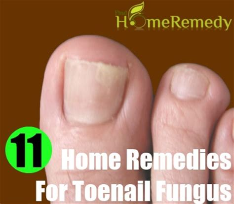 home remedies for toenail fungus treatments