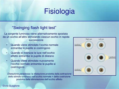 swinging light test ppt riflessi pupillari powerpoint presentation id 3927277