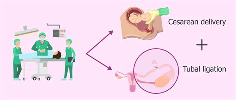 after c section and tubal ligation tubal ligation side effects weight gain mloovi blog