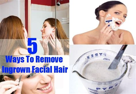 how to treat an ingrown hair on chin do you know how to reduce ingrown facial hair beauty
