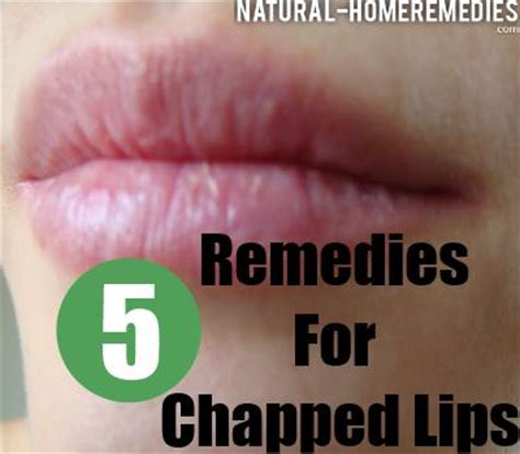 5 home remedies for chapped treatment cure