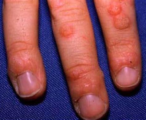 Wart Treatment File Large Plantar Warts Jpg Wikimedia Planters Wart On Finger