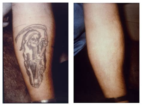 tattoo removal westerville dermatology