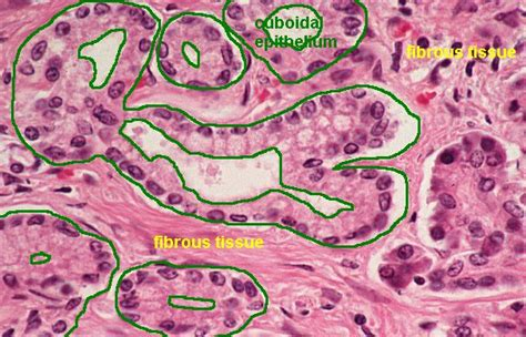 basement membrane epithelium basic histology simple cuboidal epithelium