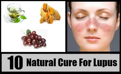 10 cure for lupus how to cure lupus naturally