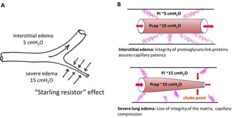 starling resistor sleep apnea starling resistor mechanism 28 images predicting the onset of high frequency self excited