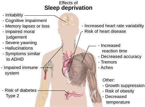 Mimpi Banyak Tidur Kurang kurang tidur lalu balas dendam efektifkah womantalk