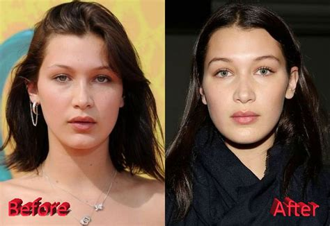 gigi hadid nose job bella hadid nose job before and after images celebrity