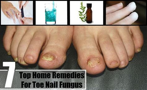 Thick Toenails Home Remedy by Top 7 Home Remedies For Toe Nail Fungus How To Cure Toe
