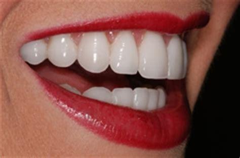 11 best porcelain veneers images veneer dentist veneers in roswell ga roswell dental