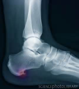 plantar fasciitis singapore sports orthopaedics clinic