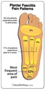 mendmeshop symptoms of plantar fasciitis