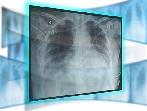 imagenes medicas universidades material ultradelgado ser 237 a clave para im 225 genes m 233 dicas en