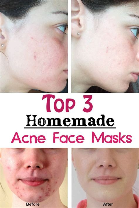 easy diy mask for acne top 3 acne masks and chang e 3