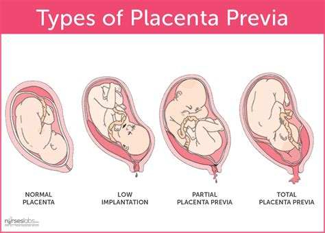 c section with low lying placenta thirty four weeks pregnant possible difficulties pregnancy