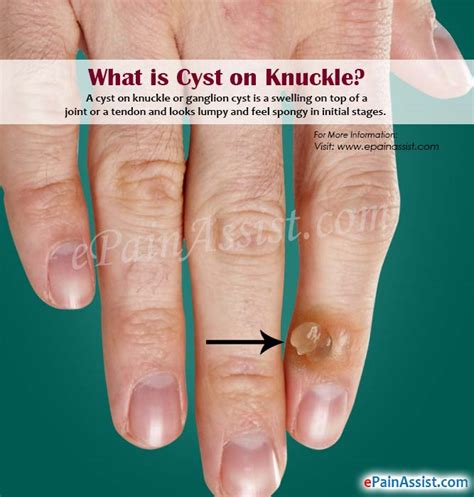 cyst on knuckle causes symptoms home remedies