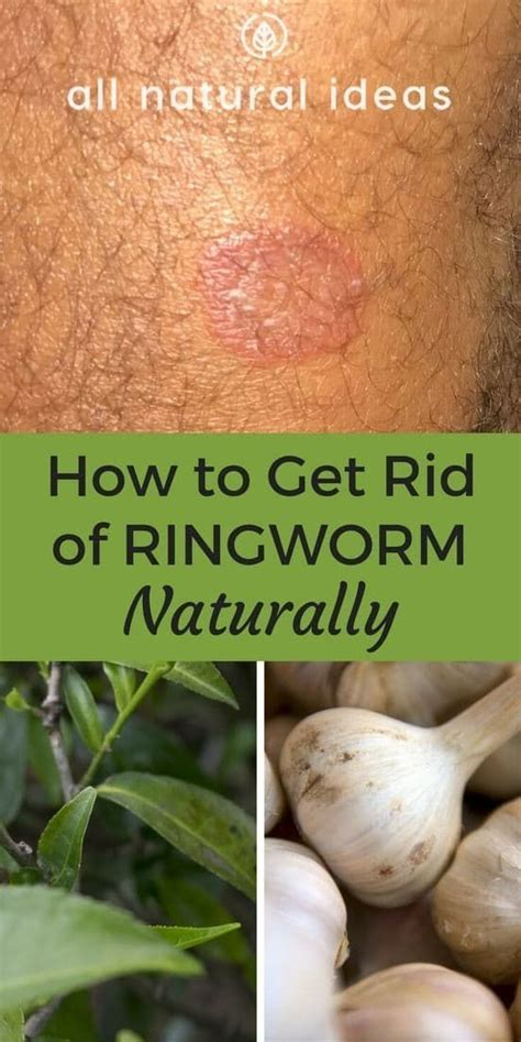 how to get rid of ringworm fast fungal infection 101 how to get rid of ringworm fast with natural methods