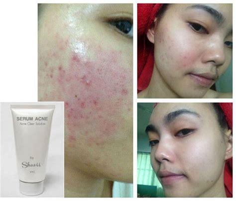 Serum Acne tester 10 ml serum acne clear treatment acne acne