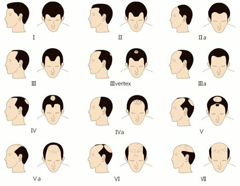 bandage hair shaped pattern baldness bandage hair shaped pattern baldness bandage hair shaped