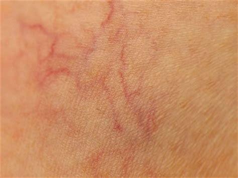rottura vasi capillari telagestacia ipl