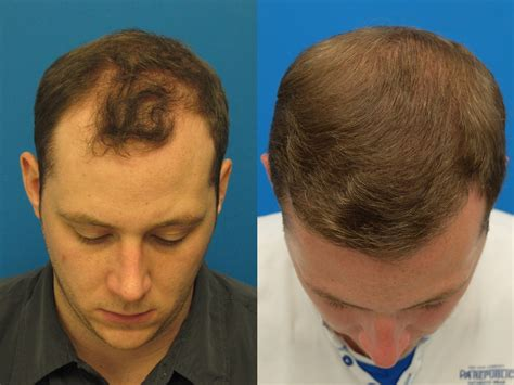 who does fut hair transplant in ohio hair loss hair transplant and hair restoration advice