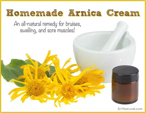 home remedies for bruises a diy arnica