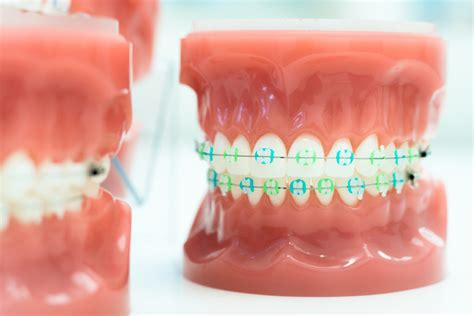clear braces with color clear braces smith and davis orthodontics