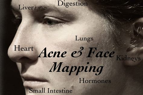 which side does st go on face mapping what are your acne breakouts telling you