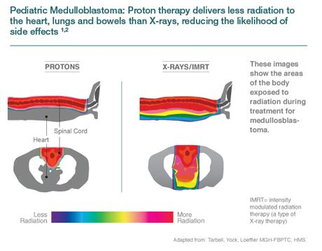 Proton Therapy Chicago by Proton Therapy For Pediatric Cancer Northwestern