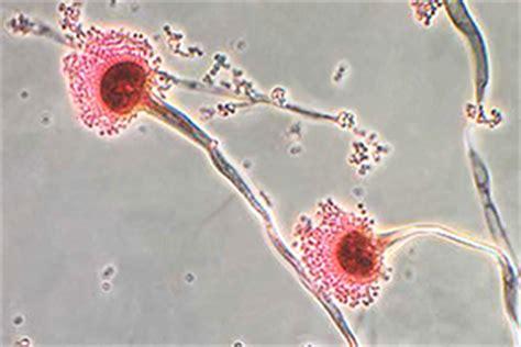 cadenas definition in spanish aspergillosis types of fungal diseases fungal diseases