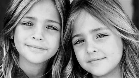 imagenes de gemelas terrorificas son las gemelas m 225 s lindas del mundo y no vas a poder