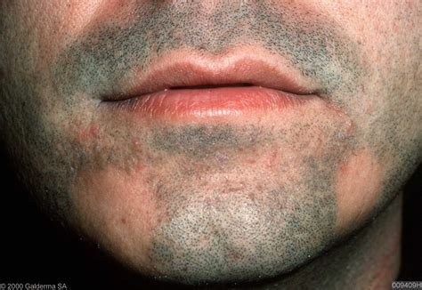 alopecia areata causes alopecia areata related keywords alopecia areata long