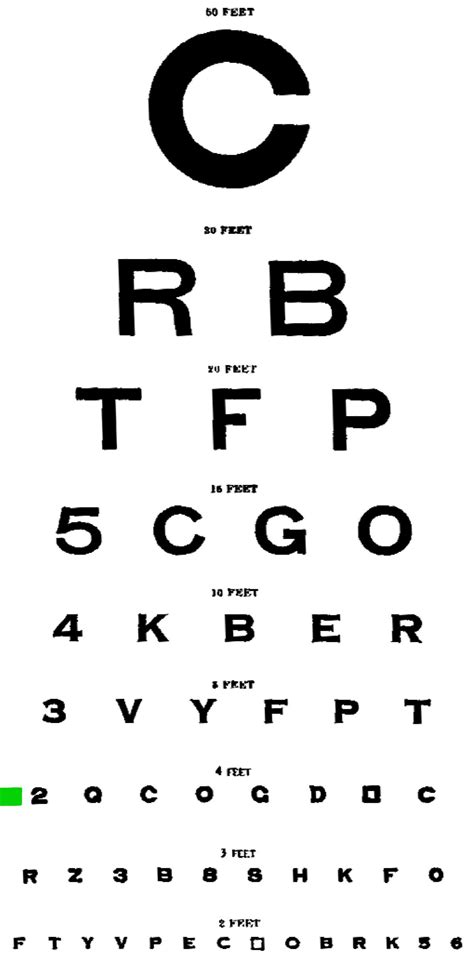 Snellen Chart Black Printing eyesight test gallery