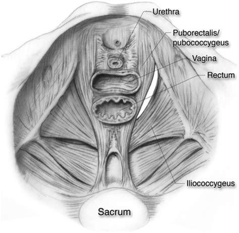 perineal hernia laparoscopic repair of perineal hernia