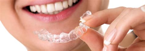 comfort dental braces cost whitening teeth at home straight teeth without braces