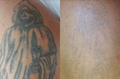 tattoo removal sunshine coast laser removal brisbane image by laser brisbane