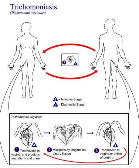trichomoniasis in pictures symptoms treatment