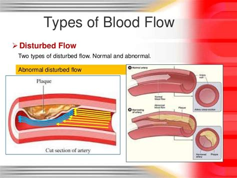 flow pattern definition blood blood flow types
