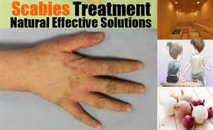 scabies home treatment how to treat scabies naturally symptoms of scabies