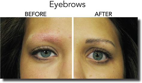 removal eyebrows before and after collection