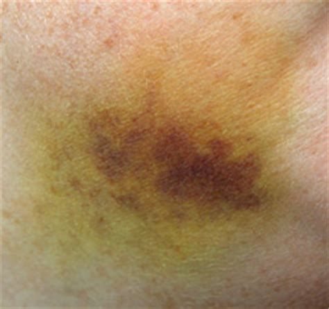 bruise colors why does a bruise change colors findersfree what do