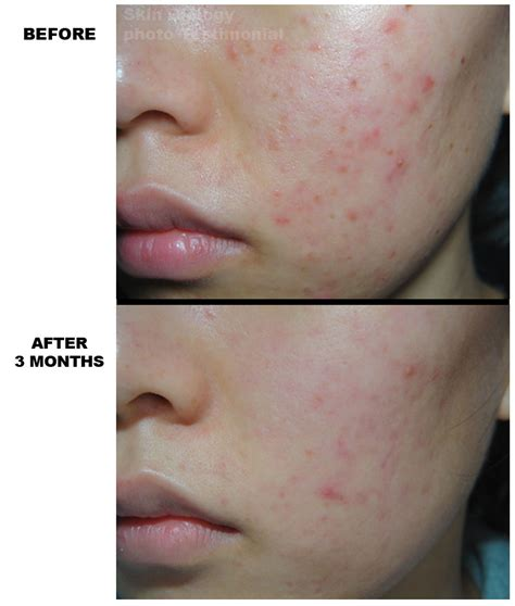 rosacea on toddlers cheeks 93 3
