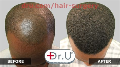 hair transplant calculator america dr upunch curl best tool for fue hair transplant for