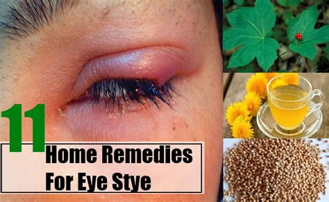 home remedies for eye stye treatments cure for