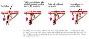 types of ingrown hair dermasphere ingrown hair