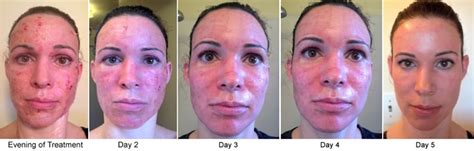 image gallery healing from laser resurfacing