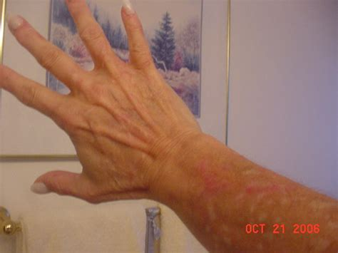 how you get morgellons disease morgellons disease how do you get it