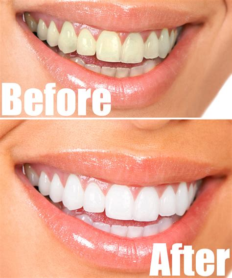 diy teeth whitening how to whiten teeth at home fast