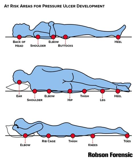 pressure ulcer points diagram pressure ulcer prevention thinglink